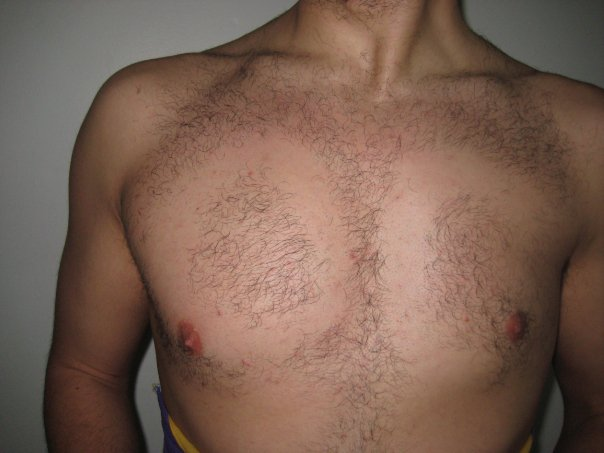 Closeup of a man's chest. The letters O and C are formed by bare sections of his chest hair.